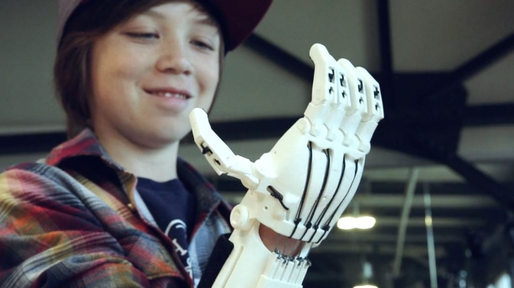 Kieran-Hand-bionic-photo