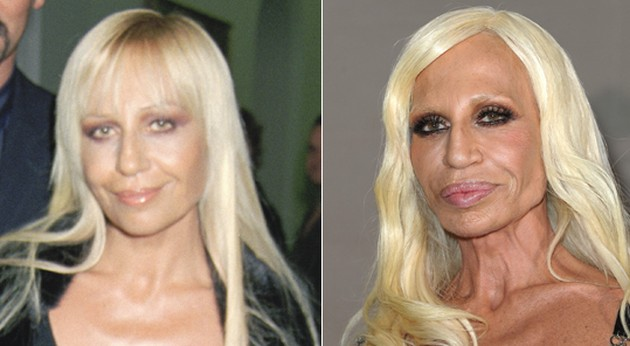 8 Worst Celebs Changed Drastically After Plastic Surgery