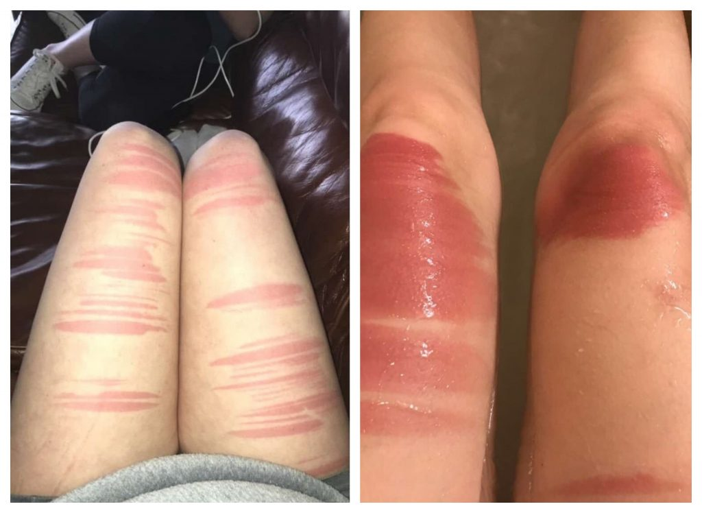 Alert! Ripped Jeans Could Be Really Dangerous for Your Health If You Wear Them in the Sun - 7 Shocking Photos to Prove This