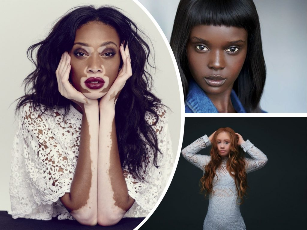Beauty Varies: 7 Very Unique Models You Have Never Seen Before Have Proved That Being Unusual Is Always a Good Thing (PART 2)