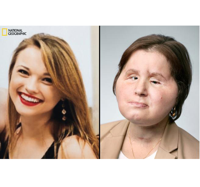 SHOCKING! A Girl Who Tried to Kill Herself Is Now Youngest Person in US to Receive Face Transplant