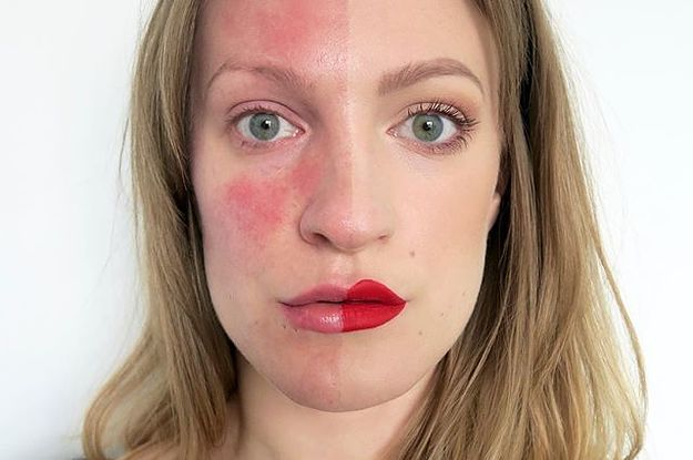 7 Simple Yet Effective Ways to Lessen the Symptoms of Adult Acne (Rosacea)