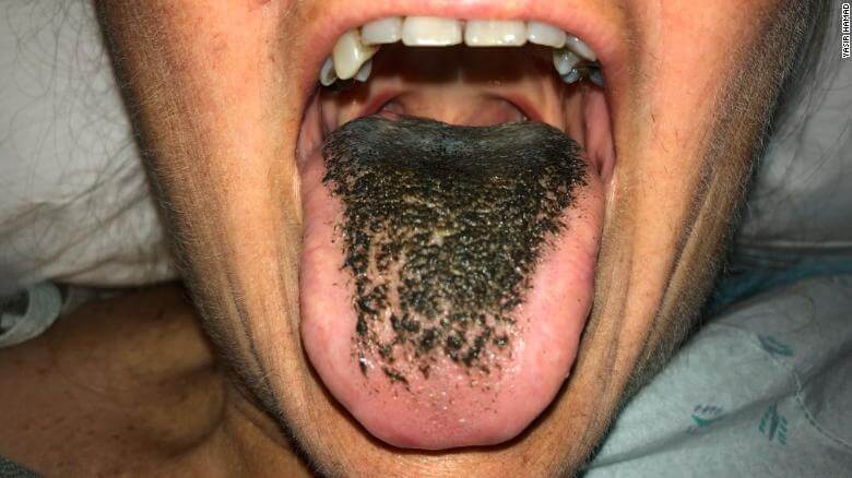 black-hairy-tongue-photo