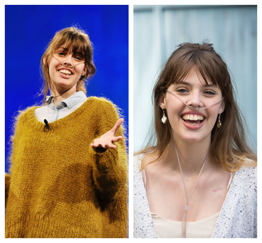 RIP, Claire Wineland: YouTube Star and Inspirational Speaker Dies After Lung Transplant at 21
