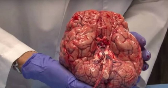 Huge Breakthrough: Scientists Grow Human Tissue That Can Help to Create First 3D Human Brain
