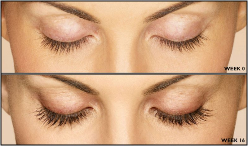 29811097e4f What You Need To Know Before You Use Eyelash Serum