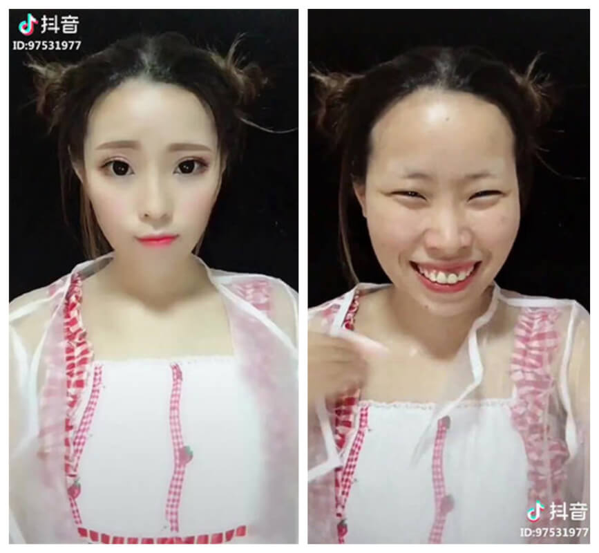 What the Heck Is DIY Plastic Surgery Trend Popular Among Asian Beauty Bloggers? (Shocking Before-After Pictures)