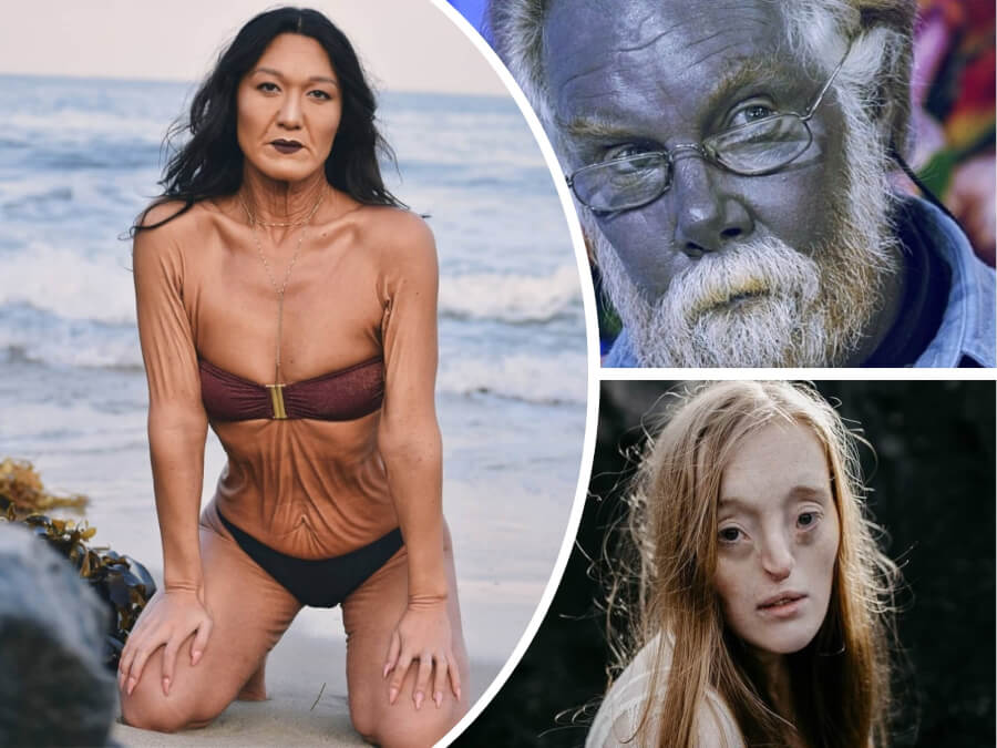 WOW! 7 Rare and Unique Body Features That You Didn't Even Think Were Real