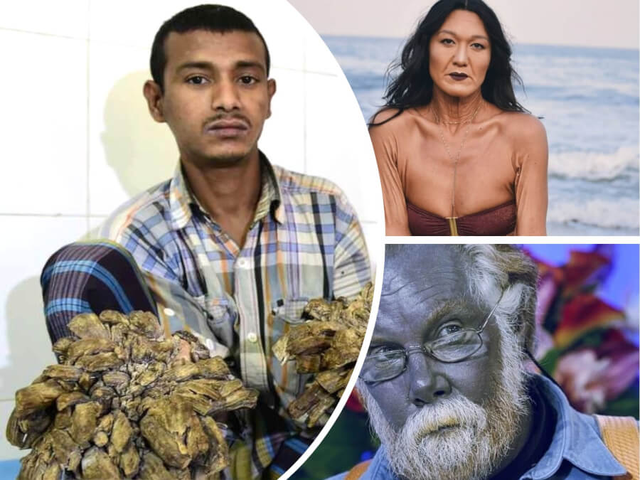 "Bangladeshi ""Tree Man"" and 7 More Rare Syndromes That You Didn't Even Think Were Real"