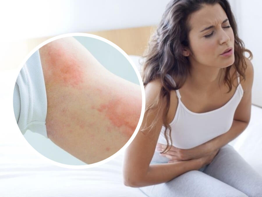 7 Allergy Symptoms People Mistake For Other Diseases - Bananas May be Dangerous!