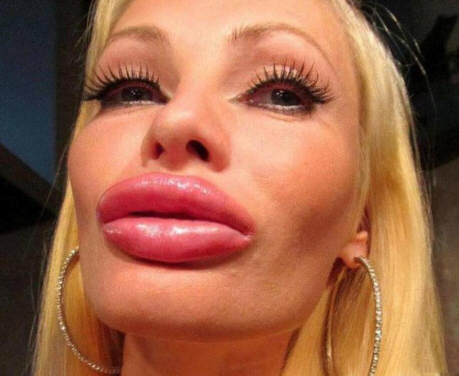 weird-huge-fake-lips-fillers-photo