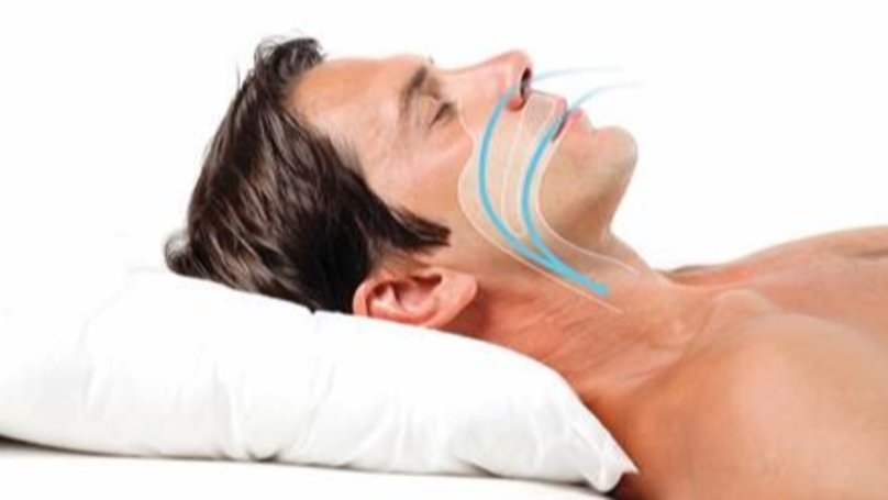 anti-snoring-devices-photo