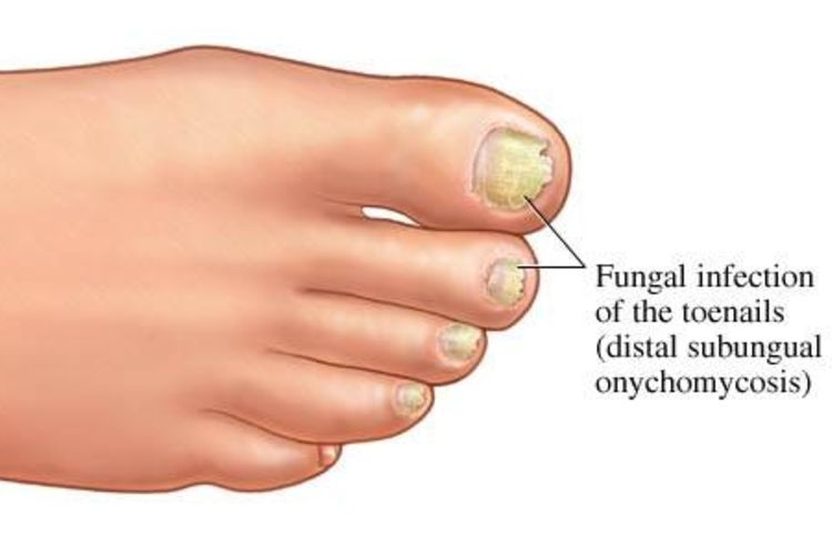 Common-Feet-Problems-To-Make-Sure-You-Don't-Have-A-Serious-Disease-pic