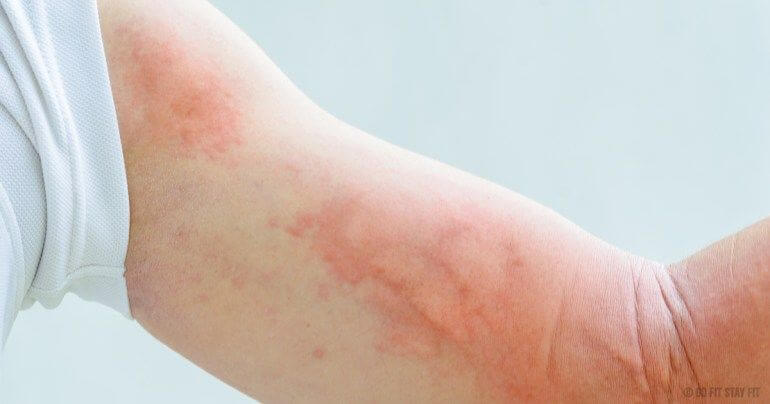 Allergy-Symptoms-People-Mistake-For-Other-Diseases-photo